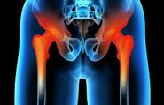 Переломы бедренной кости - Заболевания и травмы тазобедренного сустава